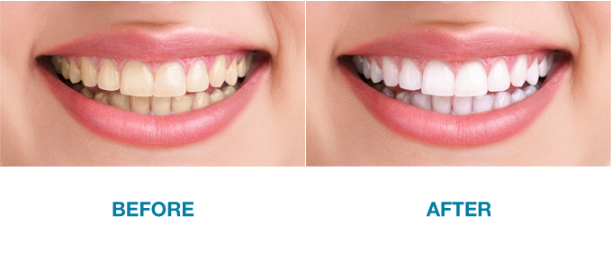 teeth-whitening-graphic