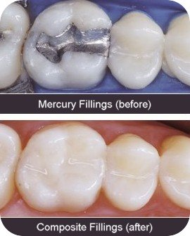 Tooth-Fillings-BA